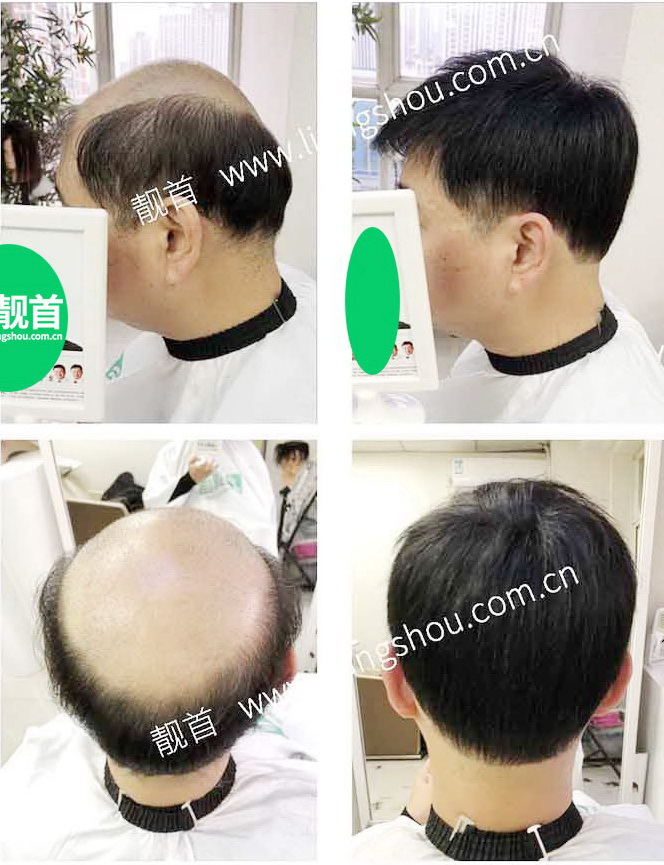 男人-真头发假发-效果-案例对比图