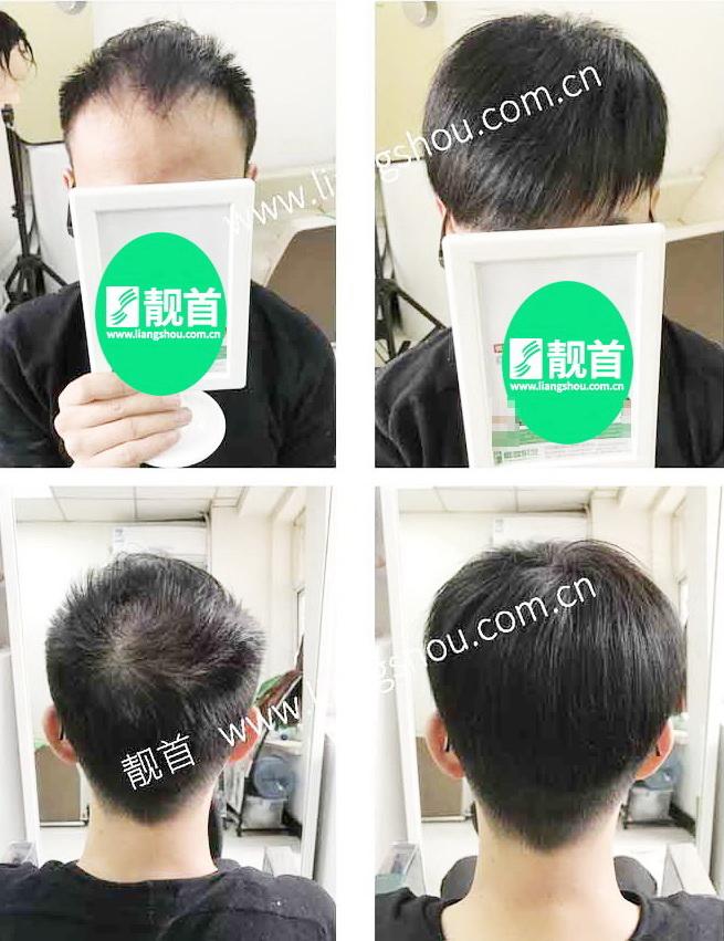 男假发套-效果-案例照片