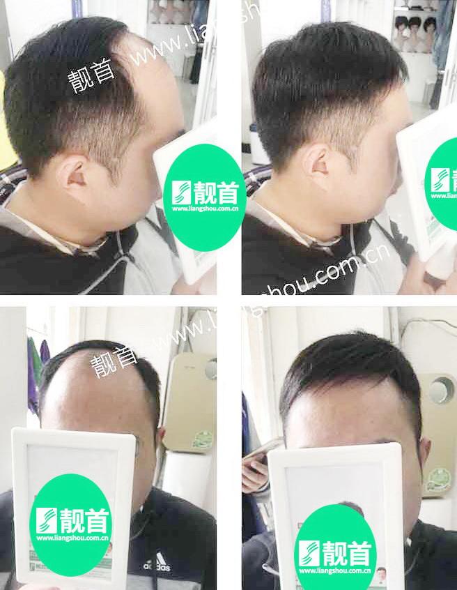 男士-增发密发-效果-案例图片