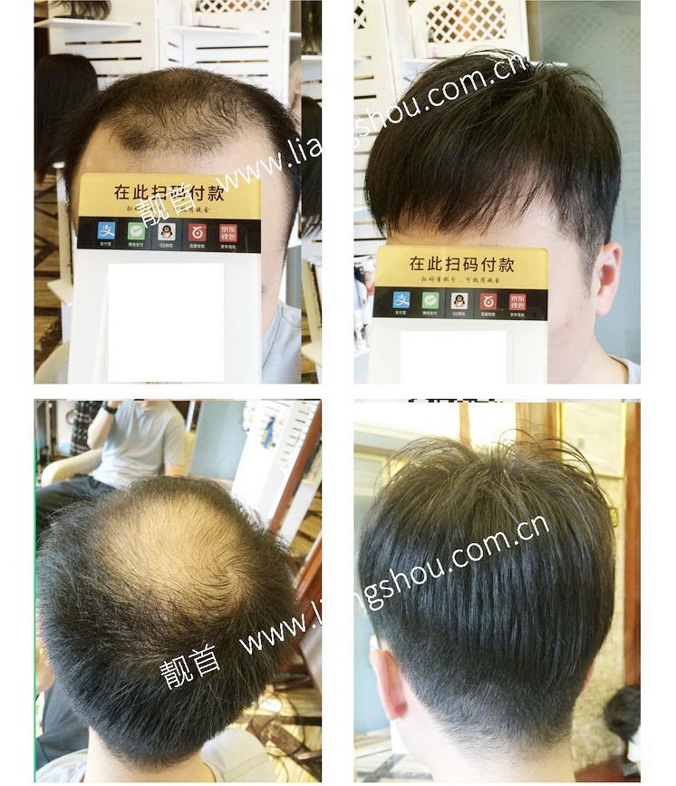 男士-真人发丝假发套-效果-实拍案例