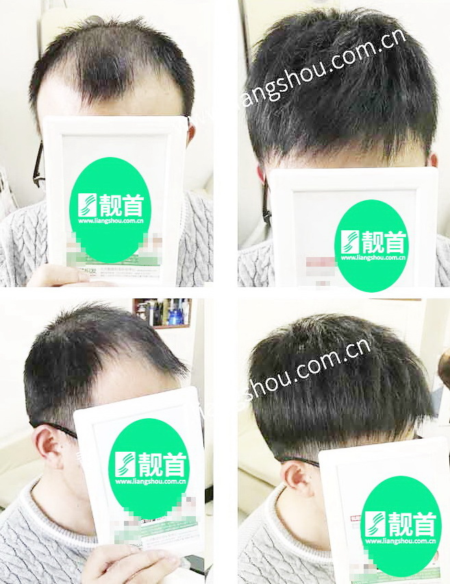男人-真头发发片-效果-案例对比图