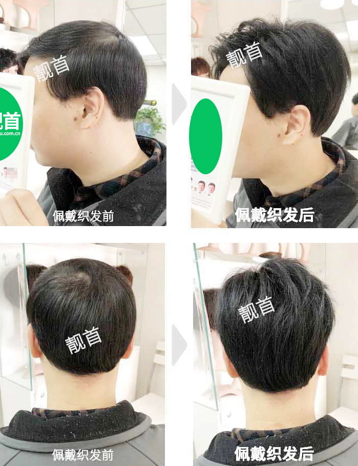 男人-发套假发-效果-案例照片