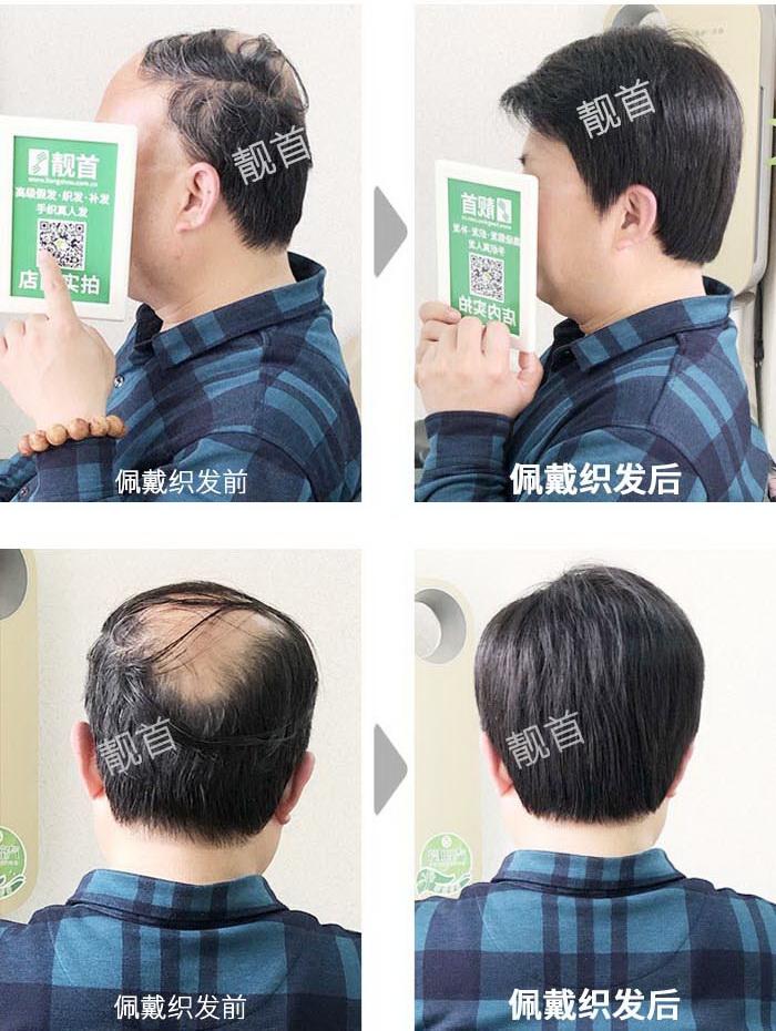 男-真发头套-效果-案例对比图