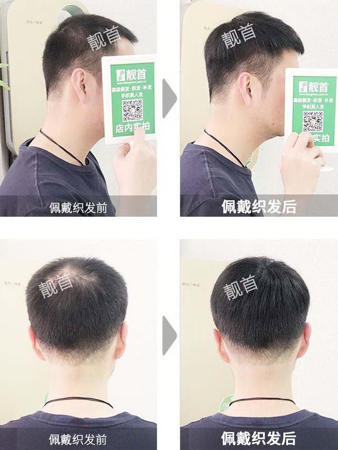 男人-秃顶假发-效果-案例
