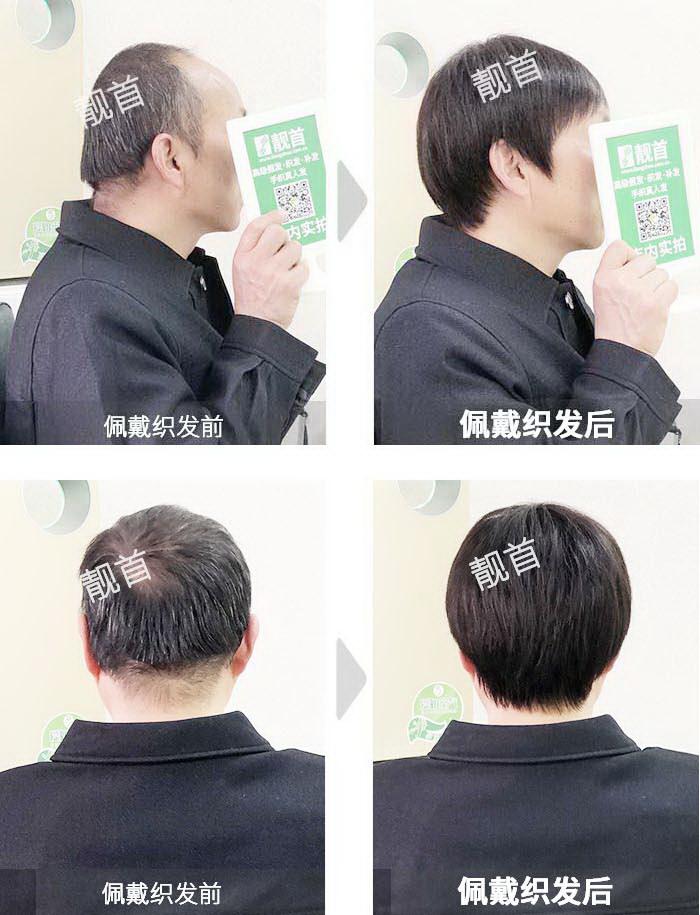 男士-假发头套-效果-实拍案例