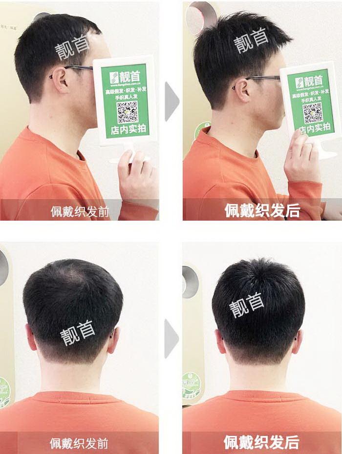 男士-头发少补发-效果-实拍案例