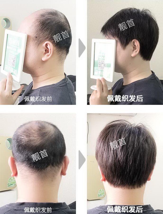 男式-头发稀少补发-效果-案例图片