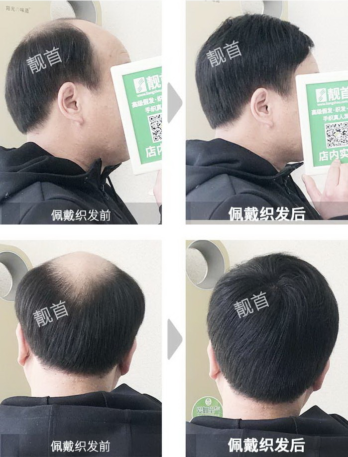 男-真发补发块-效果-案例