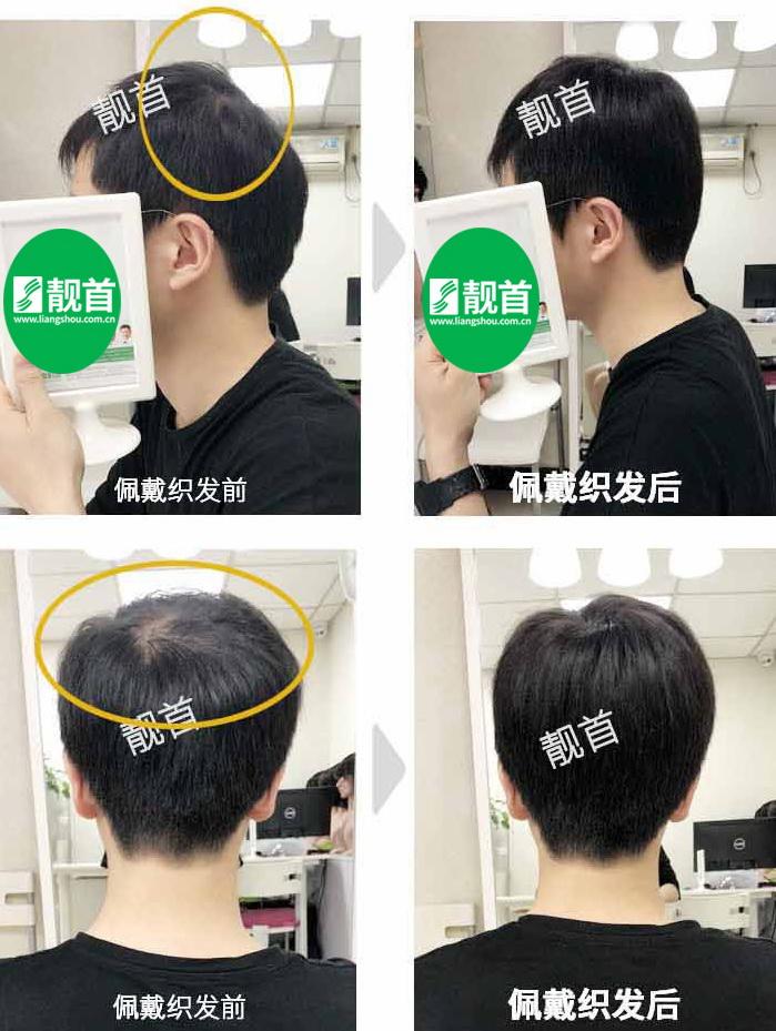 男士-秃头补发-效果-案例图片