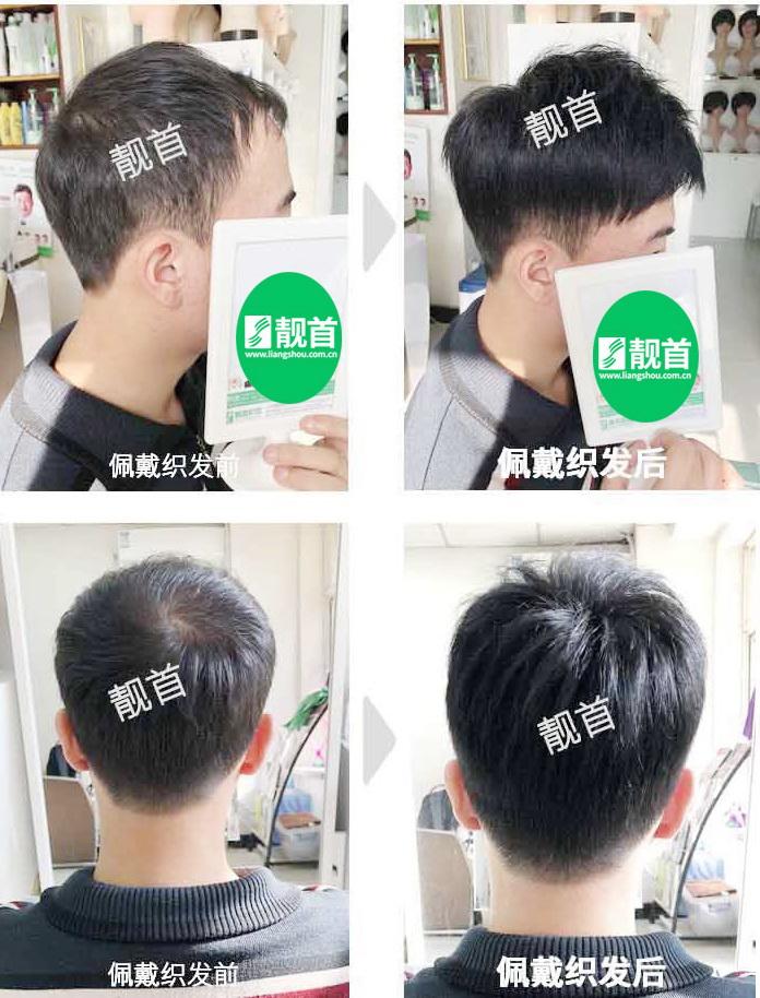 男士-短假发套-效果-实拍案例
