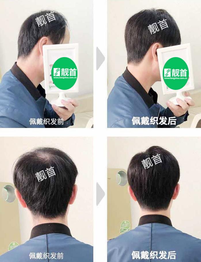 男人-真人头发做的假发-效果-案例