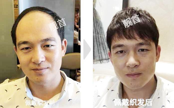 男-假发套真发-效果-案例照片
