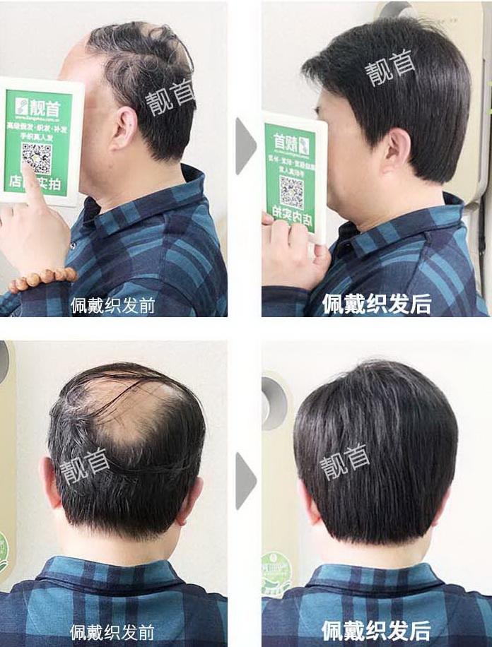 男式-真头发做的假发-效果-实拍案例