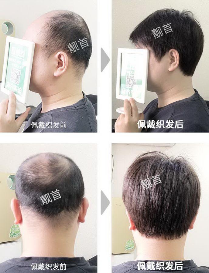 男-真发做假发套-效果-案例对比图