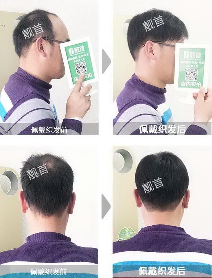 男人-真头发做发套-效果-案例