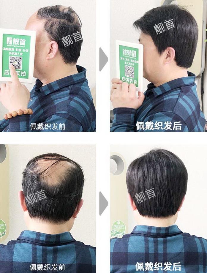 男式-真人假发织发补发-效果-案例图片