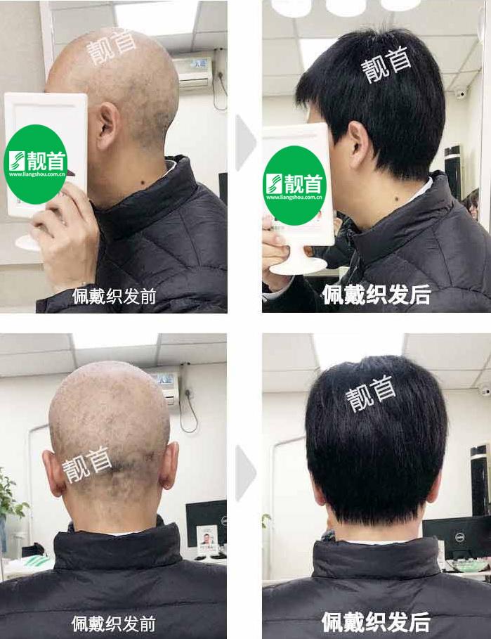 男人-隐形假发-效果-案例照片