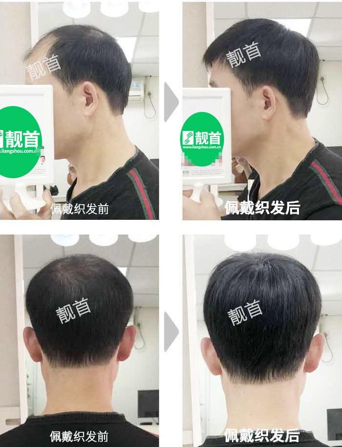 男士-人发假发-效果-案例图片