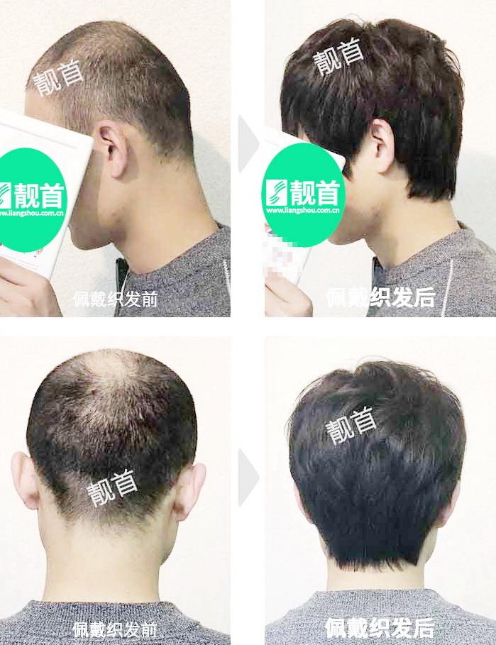 男人-无痕织发补发-效果-案例照片