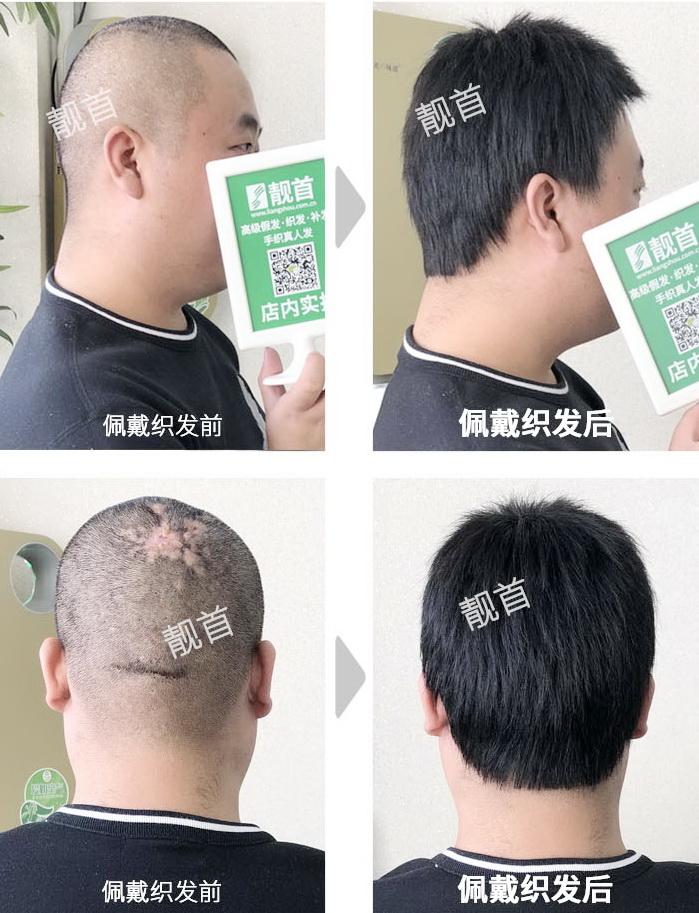 男式-假发补发-效果-店内实拍案例