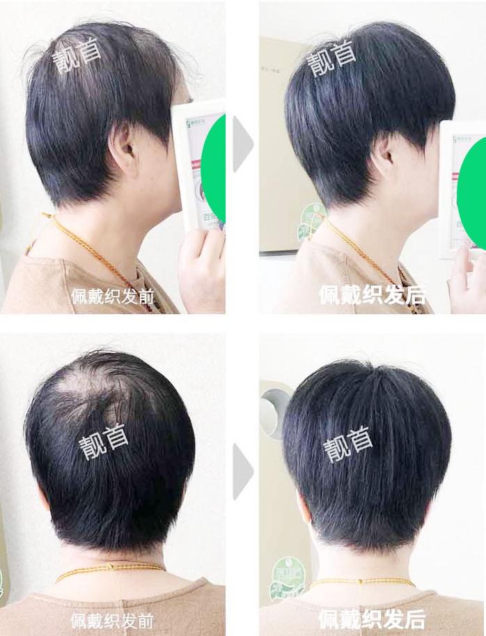 女性-老年人假发套-效果-案例照片