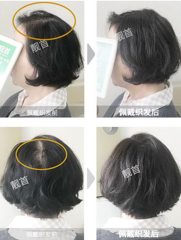 女式-中老年女士假发-效果-案例对比图
