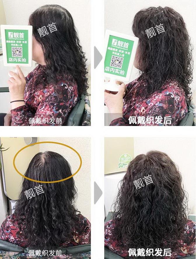 女式专业补发织发-效果-案例照片