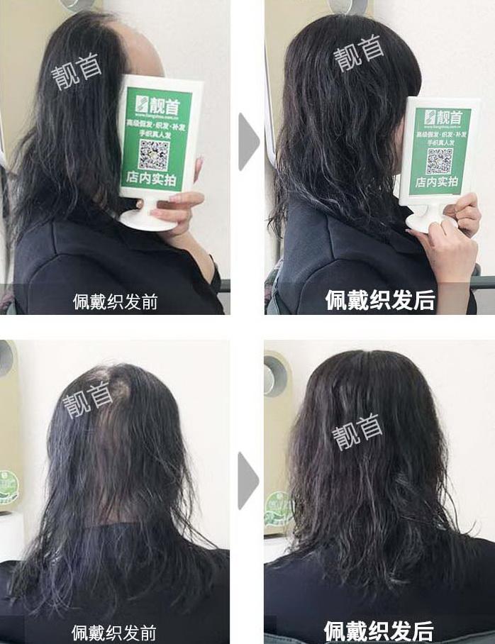 女性假发补发织发-效果-案例对比图