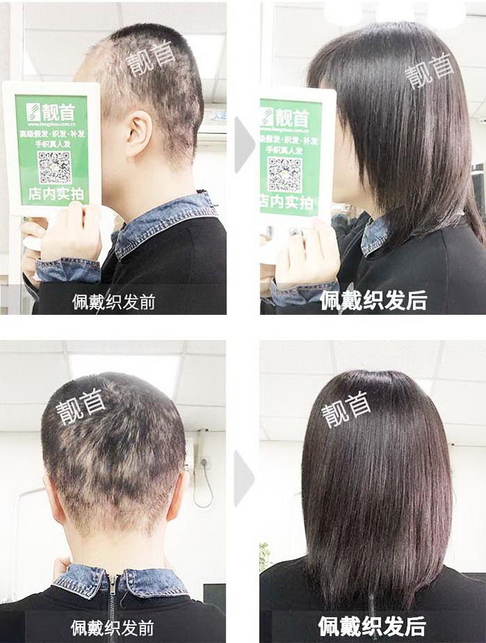 女人头套假发-效果-案例图片