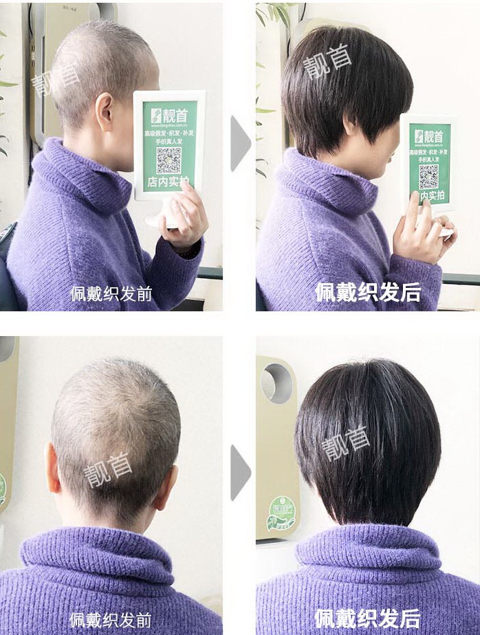 女式真发做的假发-效果-案例对比图