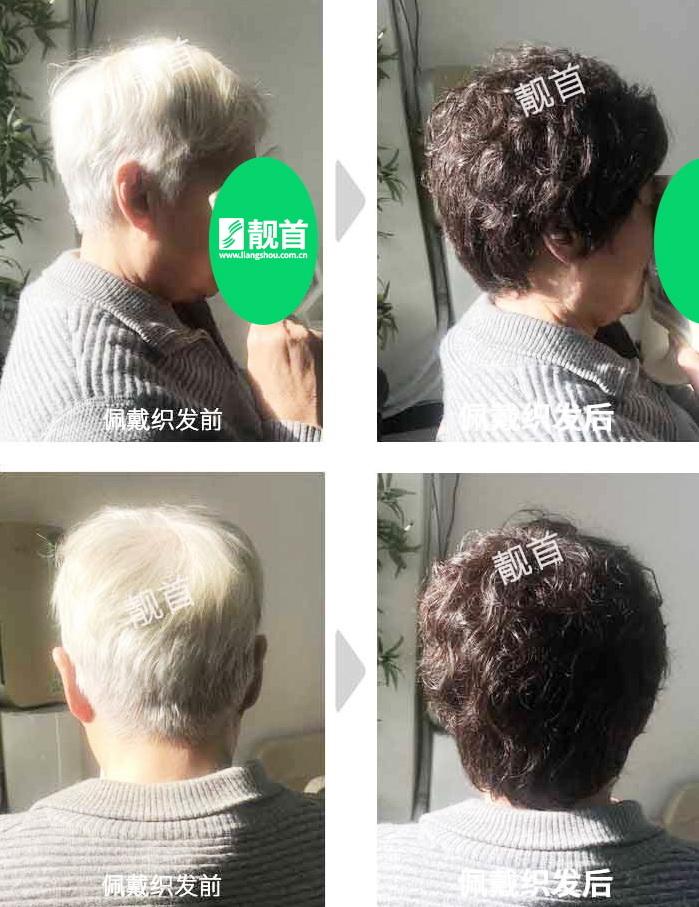 女式真发假发套-效果-案例照片