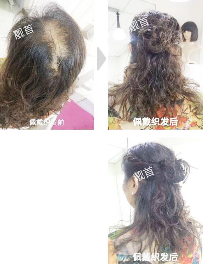 女人假发套真发-效果-实拍案例