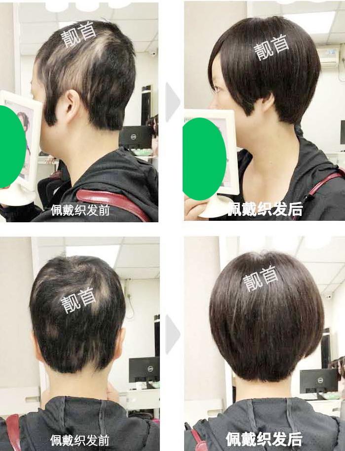 女人真发做的假发套-效果-案例图片