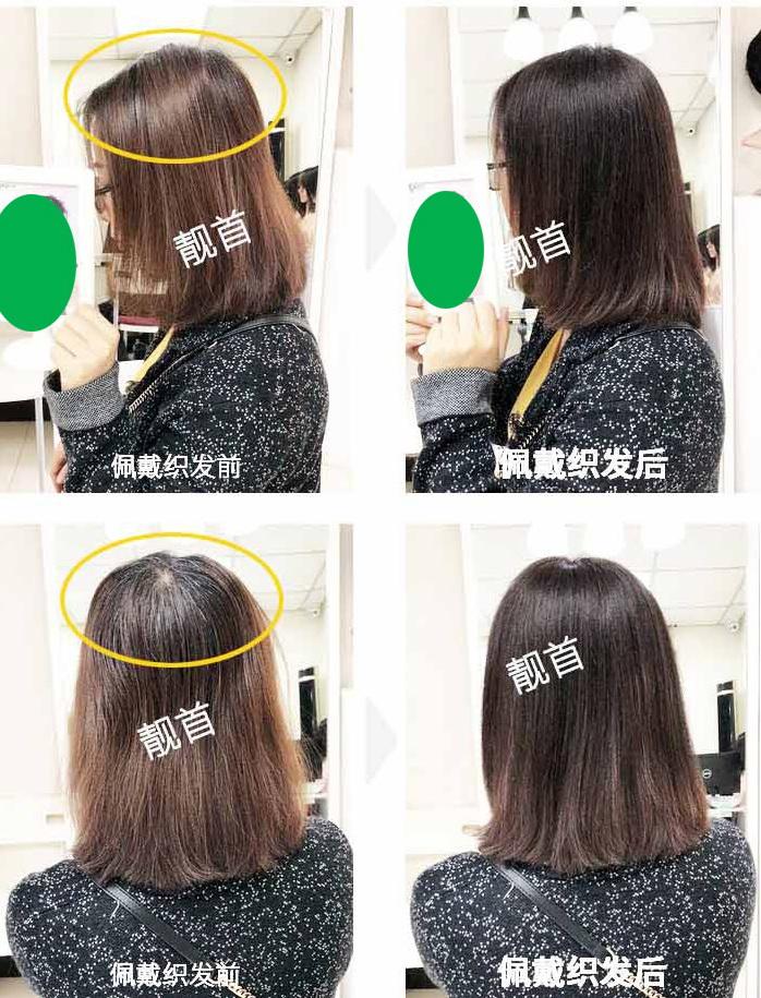 女式假发真发套-效果-案例