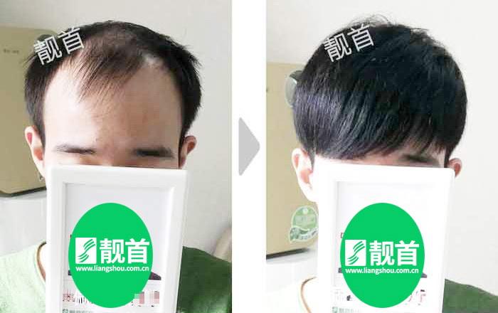 """顾客点赞:""""头顶补发片""""令我发量增加变发型"""