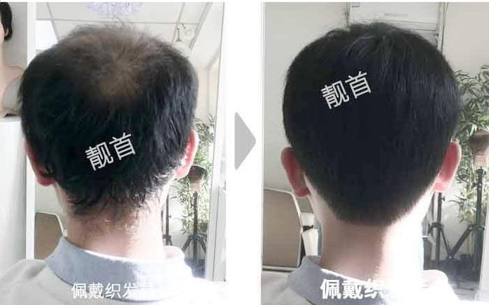 """网友点赞:""""真人头发做的假发""""使我有了新的发型"""