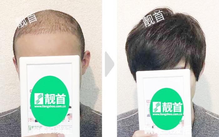 """网友点赞:""""用真发做的假发""""使我如获新生"""