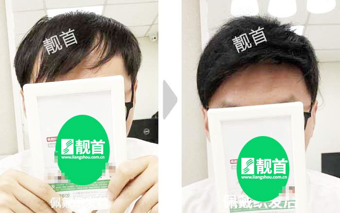 补发发块使我有了新的发型
