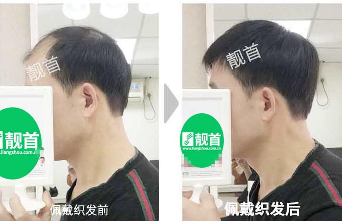 """197顾客自述:""""时尚假发""""令我发量增加变发型"""