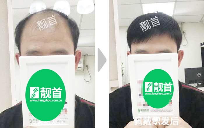 """359顾客点赞:""""织发补发假发""""令我发量增加可以做新的发型"""
