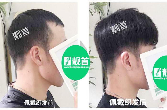 头顶假发令我发量增加可以做新的发型