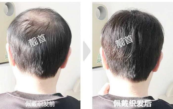 """顾客点赞:""""物理增发""""令我发量增加变发型"""
