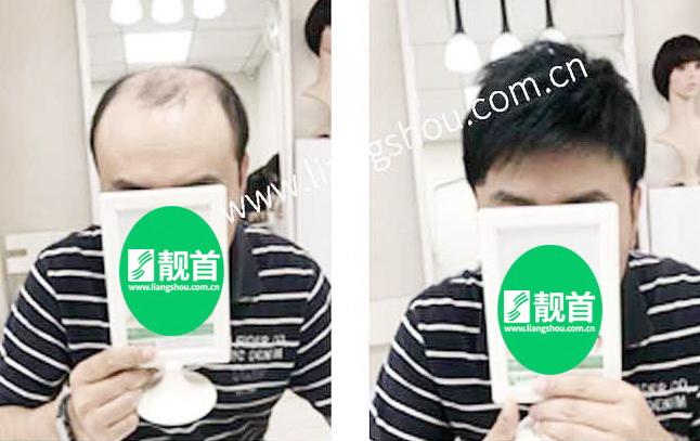 """33发友自述:""""真头发发片""""让我有了新的发型"""