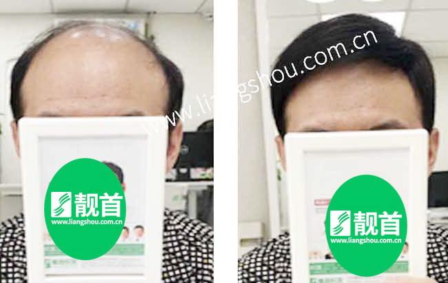 一片式假发让我有了新的发型