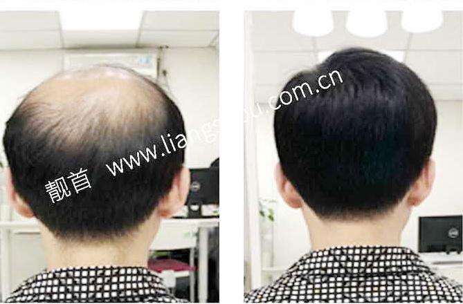 """网友自述:""""真人发假发""""使我发量增加可以做新的发型"""