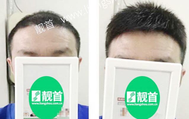 隐形补发,脱发男形象提升的秘诀!