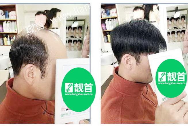 """发友自述:""""增发补发""""让我发量增加可以做新的发型"""