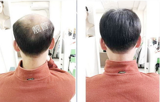 """网友点赞:""""隐形补发""""使我发量增加可以做新的发型"""