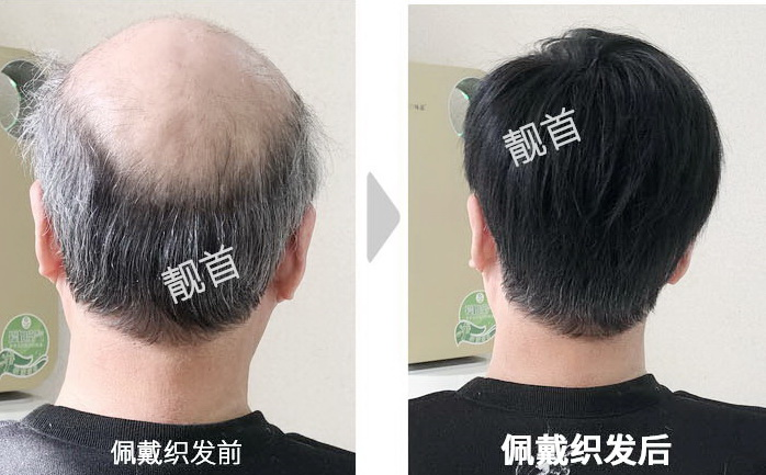 假发发片真发让老爸自信满满!