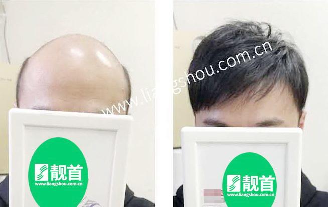 """网友点赞:""""头顶增发""""使我发量增加可以做新的发型"""